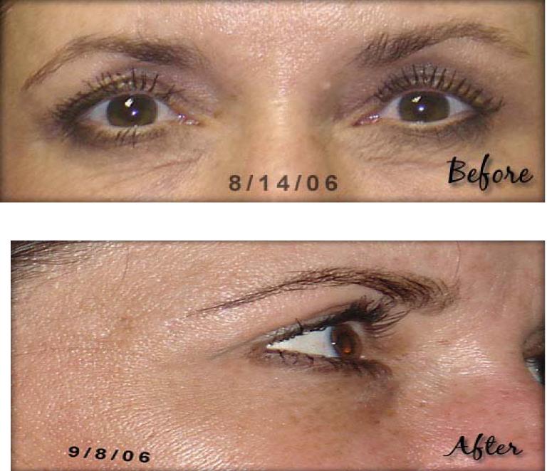 Como hacer desaparecer las arrugas debajo de los ojos | Vida Natural ...